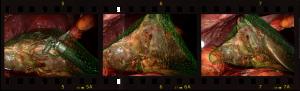 film_strip_augmented_liver